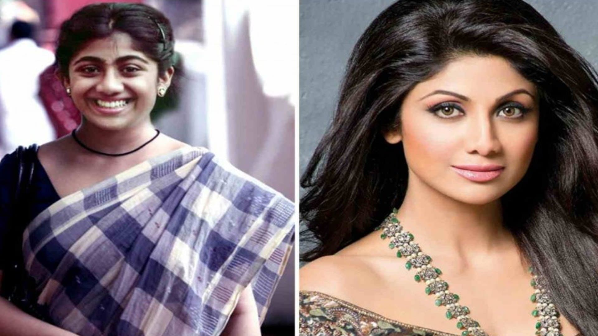 Bollywood Actresses Before And After Plastic Surgery Pictures 1