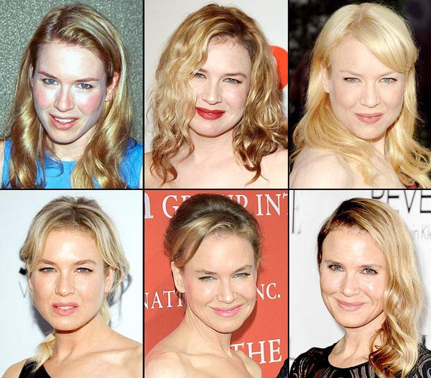 Did Renee Zellweger Have Plastic Surgery Before Bridget Jones Baby photo - 1