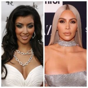 Kim Kardashian Plastic Surgery To Face Before And Afters 1