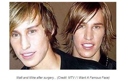 Before And After Twins Get Plastic Surgery To Look Like Brad Pitt 1