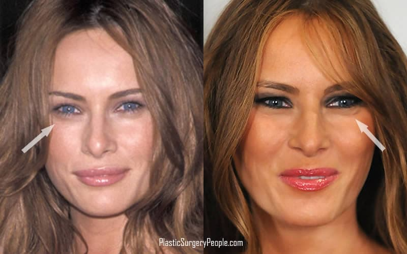 Melania Trump Before And After Plastic Surgery And Breast Implants 1