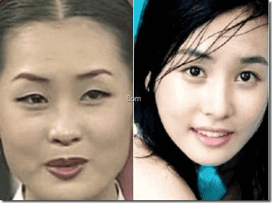 Before Plastic Surgery 1
