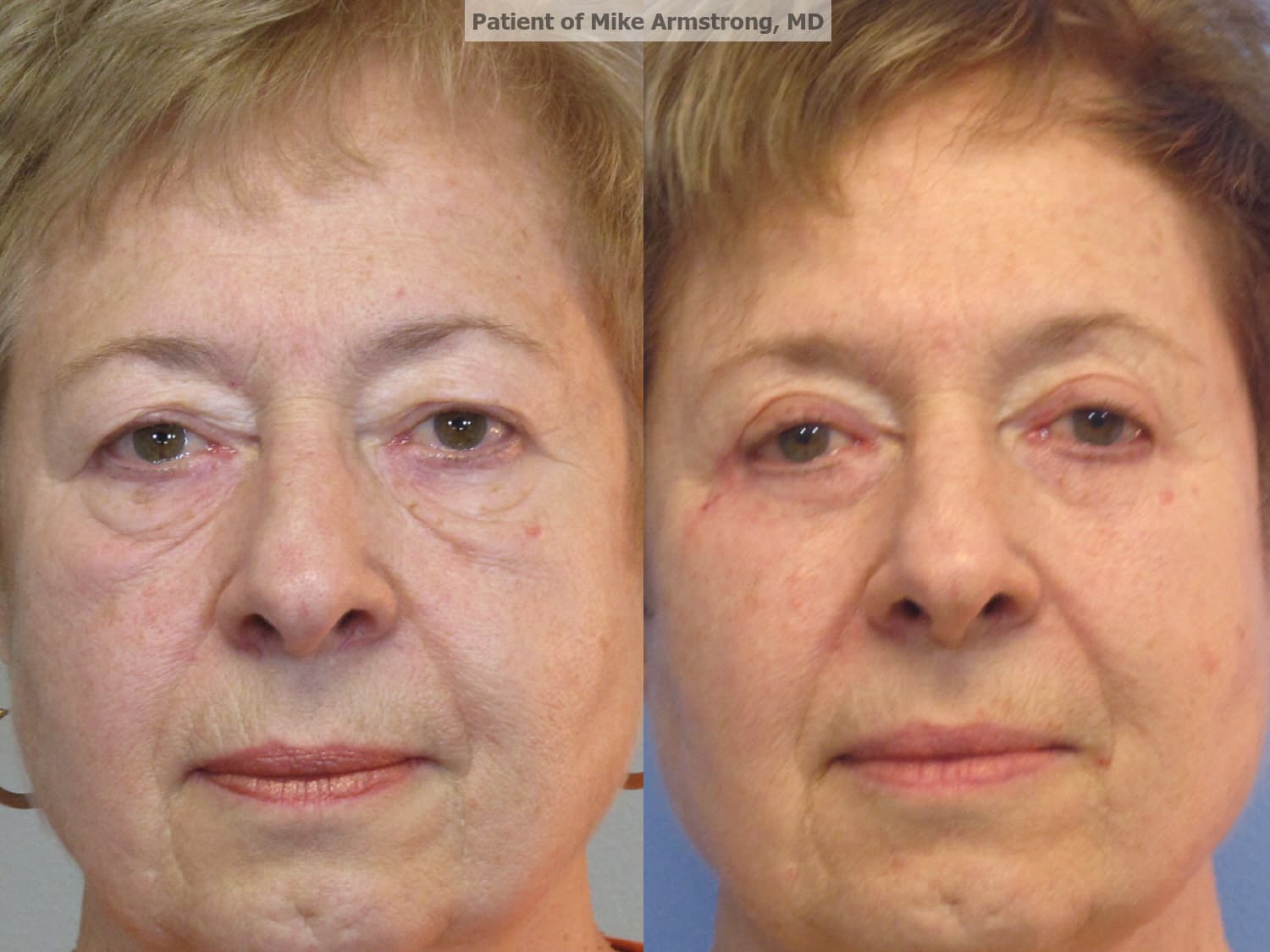 How Many Months Before Surgery Should You Consult With Plastic Surgeon 1