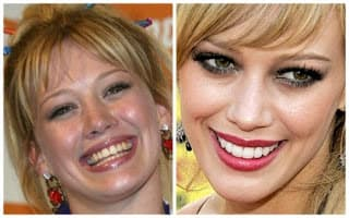 These Celebrities Look Like Completely Different People Before Their Plastic Surgery 1