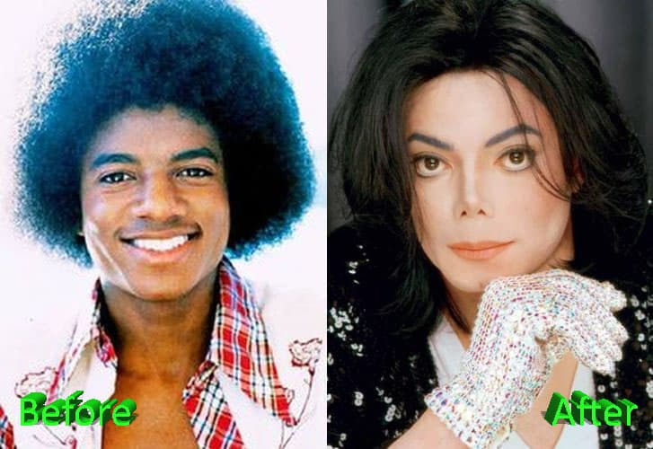 Mj Before And After Plastic Surgery 1