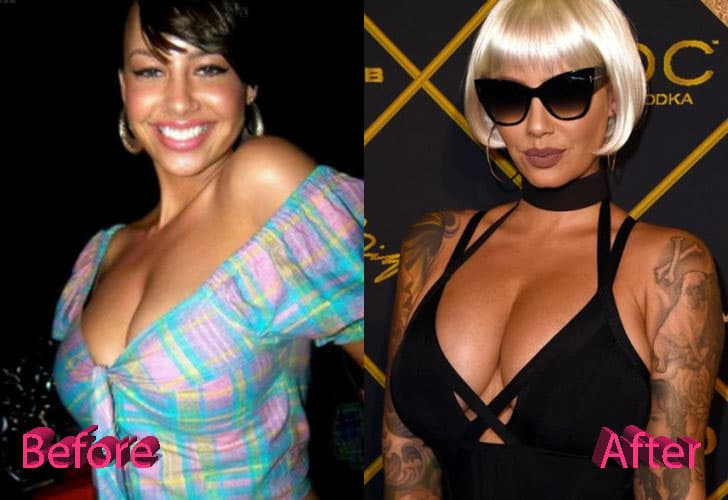 Amber Rose Before Plastic Surgery 1