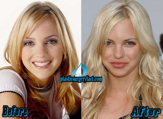 Anna Faris Before Plastic Surgery 1