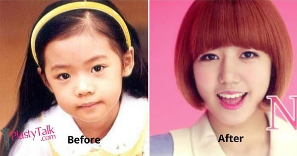 Before After Plastic Surgery 1