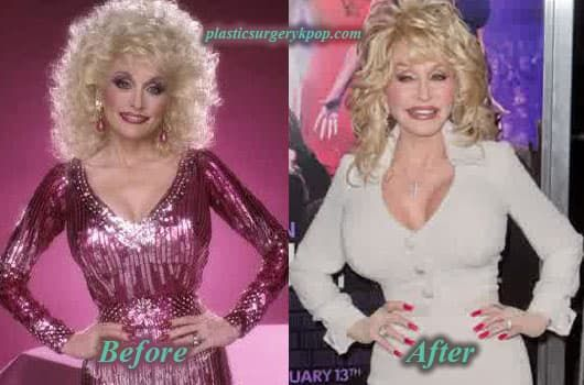 Dolly Parton Before Plastic Surgery 1