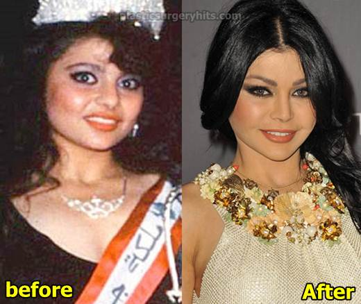 Haifa Wehbe Before Plastic Surgery 1