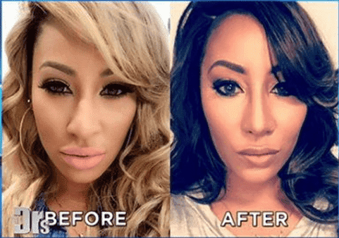 Hazel E Before And After Surgery pictures