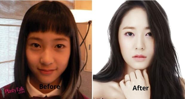 Jessica Jung Before Plastic Surgery 1