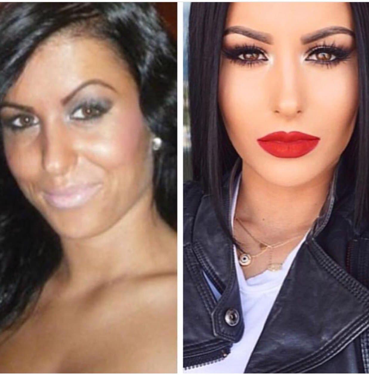 Kylie Before After Plastic Surgery 1