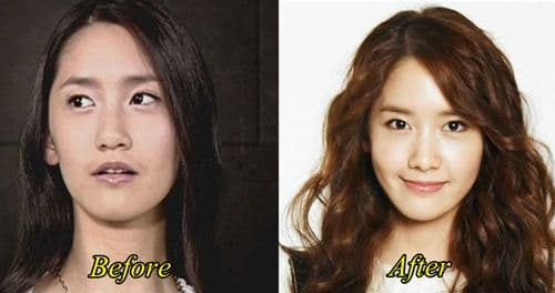 Yoona Before Plastic Surgery 1