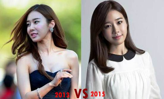 Yoo In Na Before Plastic Surgery 1