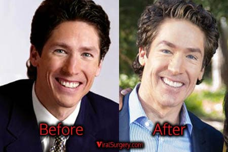 Men Plastic Surgery Before After 1