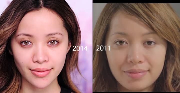 Michelle Phan Before Plastic Surgery 1