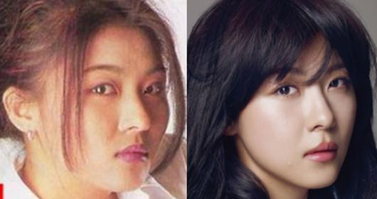 Nana Before After Plastic Surgery 1