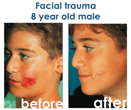 Acne Plastic Surgery Before After 1