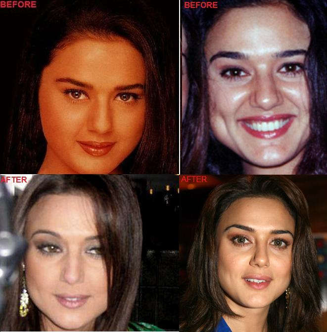 Actress Before Plastic Surgery 1