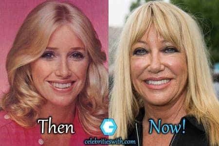 Before And After Bad Plastic Surgery 1