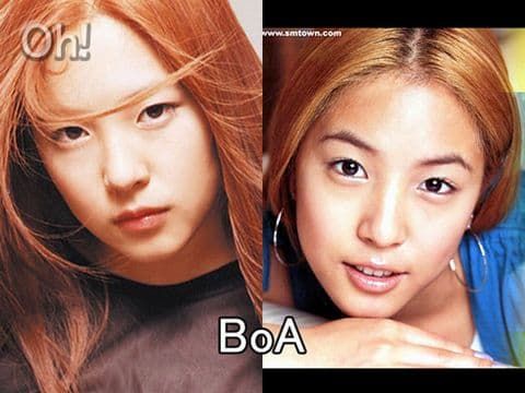 Boa Before And After Plastic Surgery 1