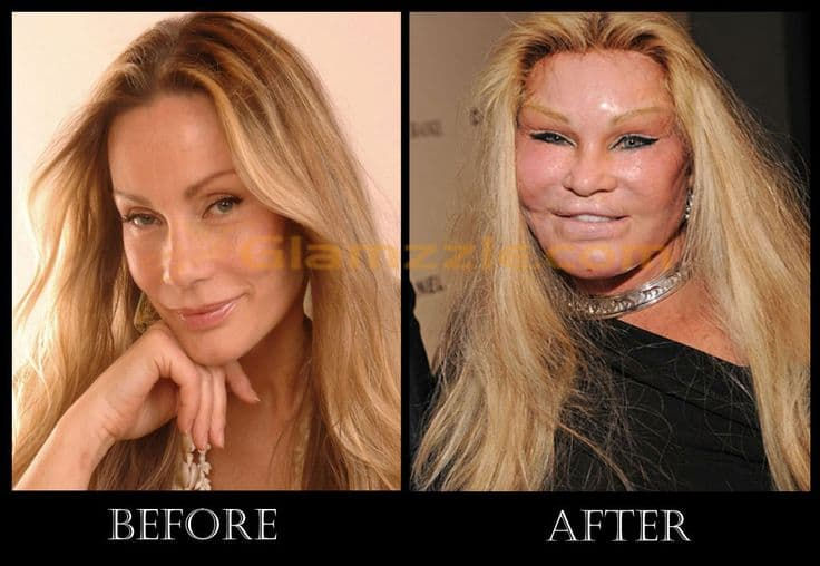 Cat Lady Before Plastic Surgery 1