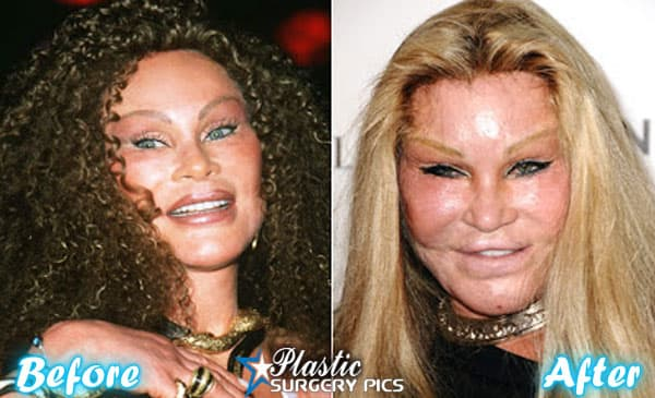 Cat Lady Plastic Surgery Before After 1