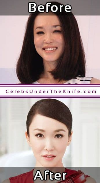 Celebs Plastic Surgery Before After 1