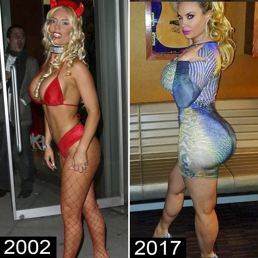 Coco T Before Plastic Surgery 1