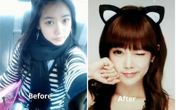 Eunjung Before Plastic Surgery 1