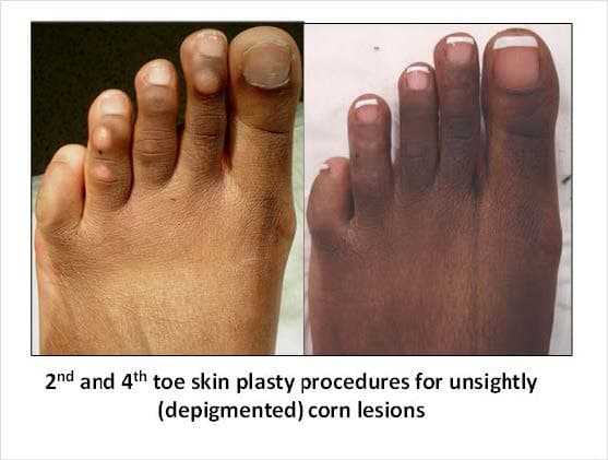 Feet Plastic Surgery Before And After 1