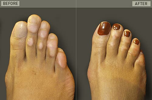 Foot Plastic Surgery Before And After 1
