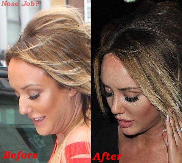 Hand Plastic Surgery Before And After 1