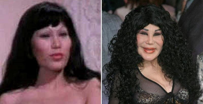 Lyn May Before Plastic Surgery 1