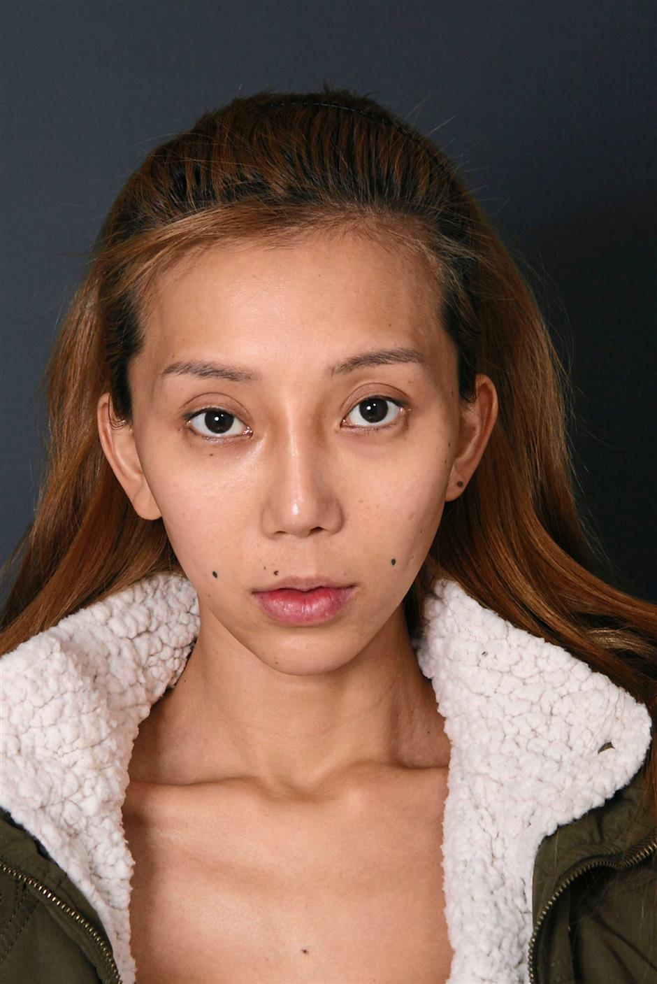 Leng Yein Before Plastic Surgery 1