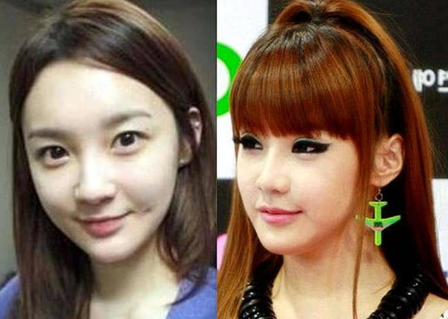 Park Bom Before After Plastic Surgery 1