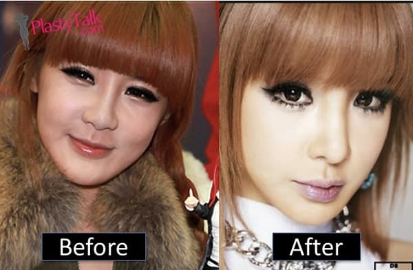 Park Bom Plastic Surgery Before After 1