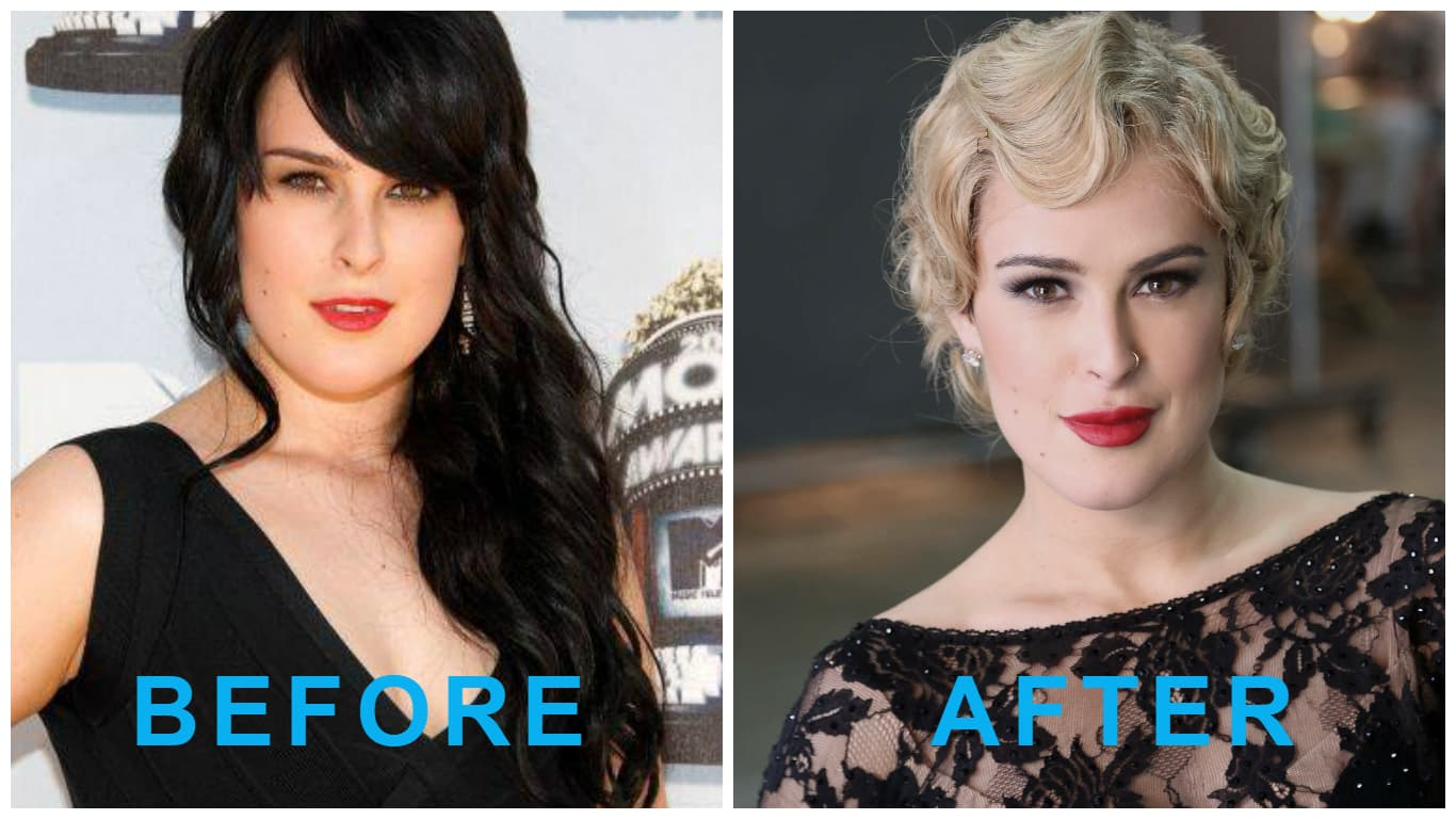 Rumer Willis Before Plastic Surgery 1