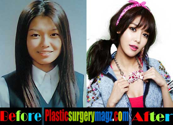 Snsd Taeyeon Before Plastic Surgery 1