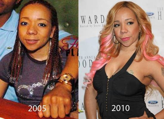 Ti Wife Before Plastic Surgery 1