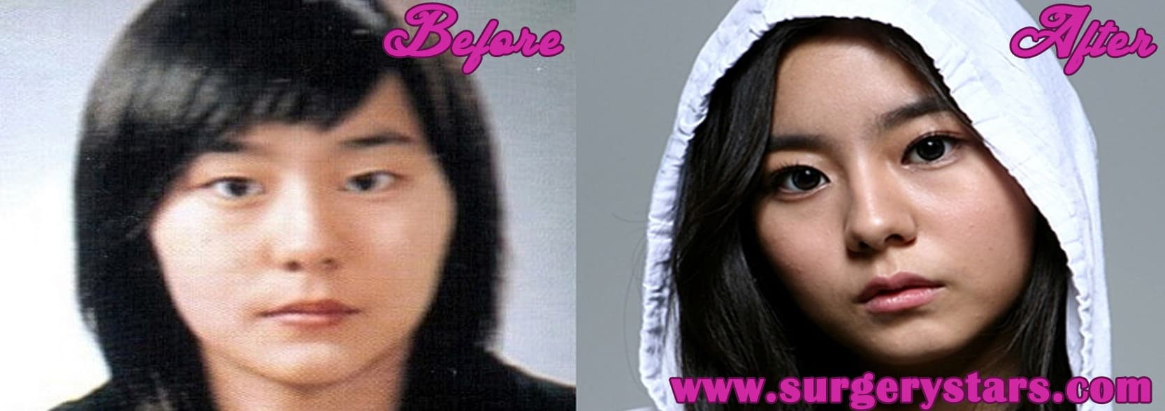 Uee Plastic Surgery Before And After 1