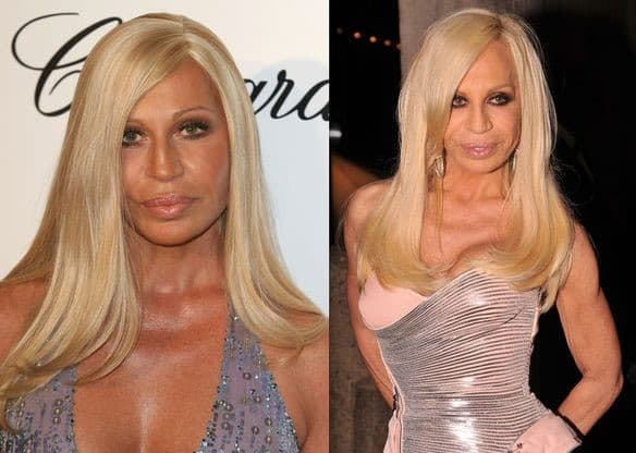 Versace Before Plastic Surgery 1