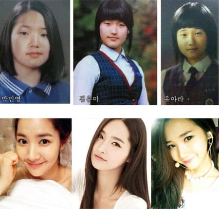 Yoona Before Plastic Surgery Snsd 1