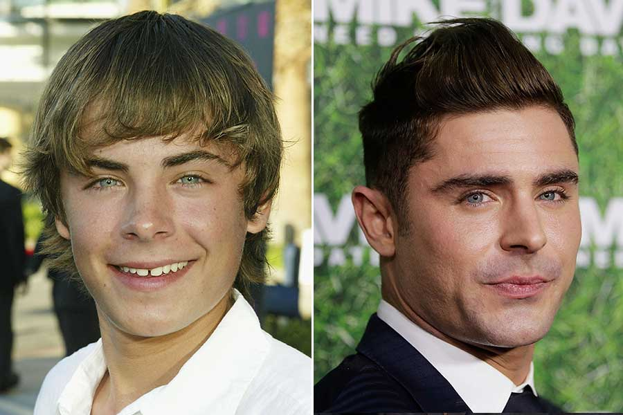 Zac Efron Before Plastic Surgery 1