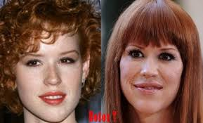 Molly Ringwald Plastic Surgery Before And After