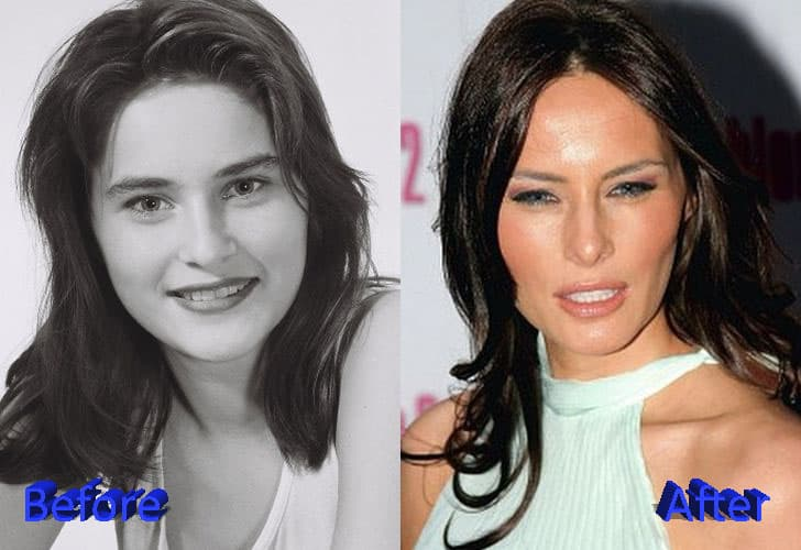 Melania Plastic Surgery Before After 1