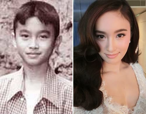 Nong Poy Before Plastic Surgery 1