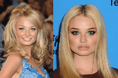 Emma Rigby Before Plastic Surgery 1