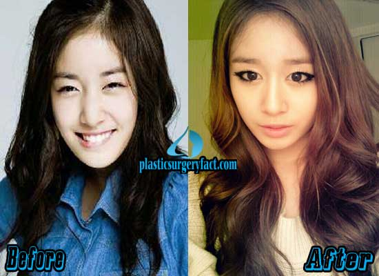 Hyomin Before Plastic Surgery 1